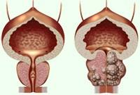 hyperplazie-prostata.jpg
